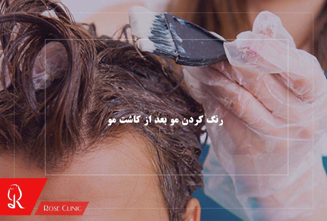 تصویر از رنگ کردن مو بعد از کاشت مو امکان پذیر است؟