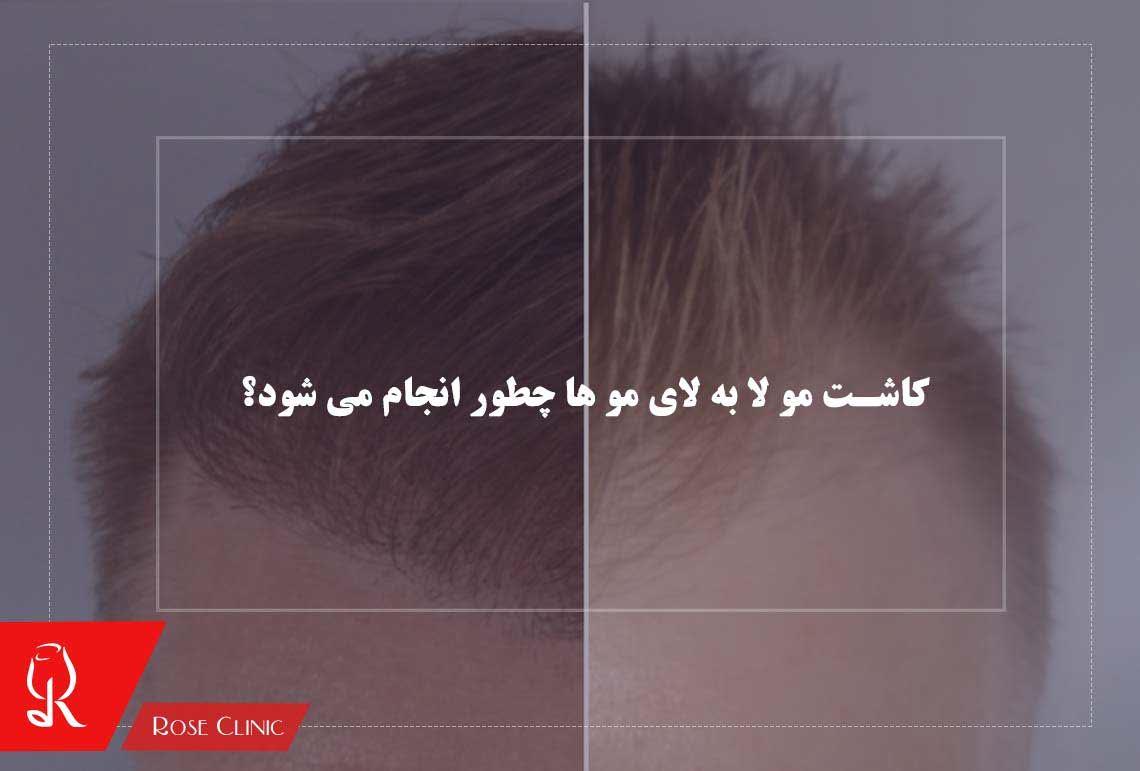 تصویر از کاشت مو لا به لای مو ها چطور انجام می شود؟