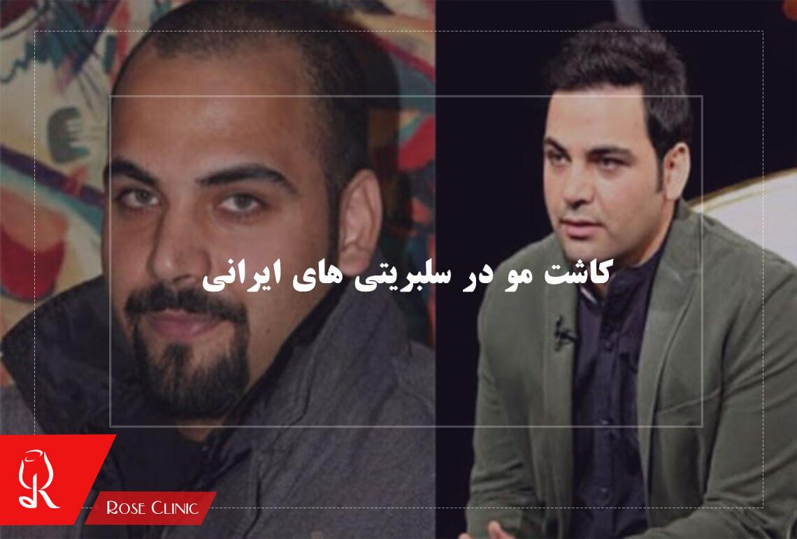 تصویر از کاشت مو در افراد مشهور ایرانی