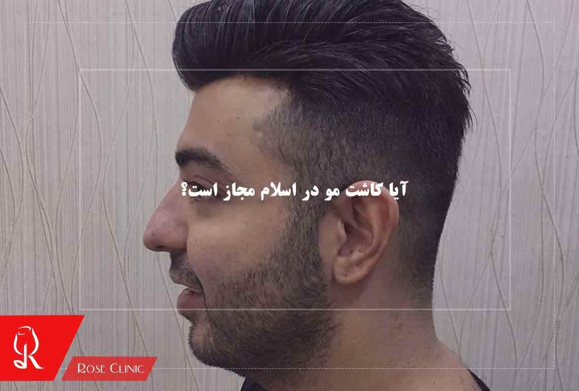 تصویر از آیا کاشت مو در اسلام مجاز است؟