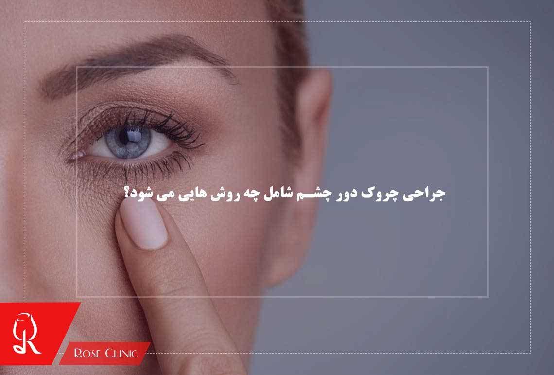 تصویر از جراحی چروک دور چشم شامل چه روش هایی می شود؟