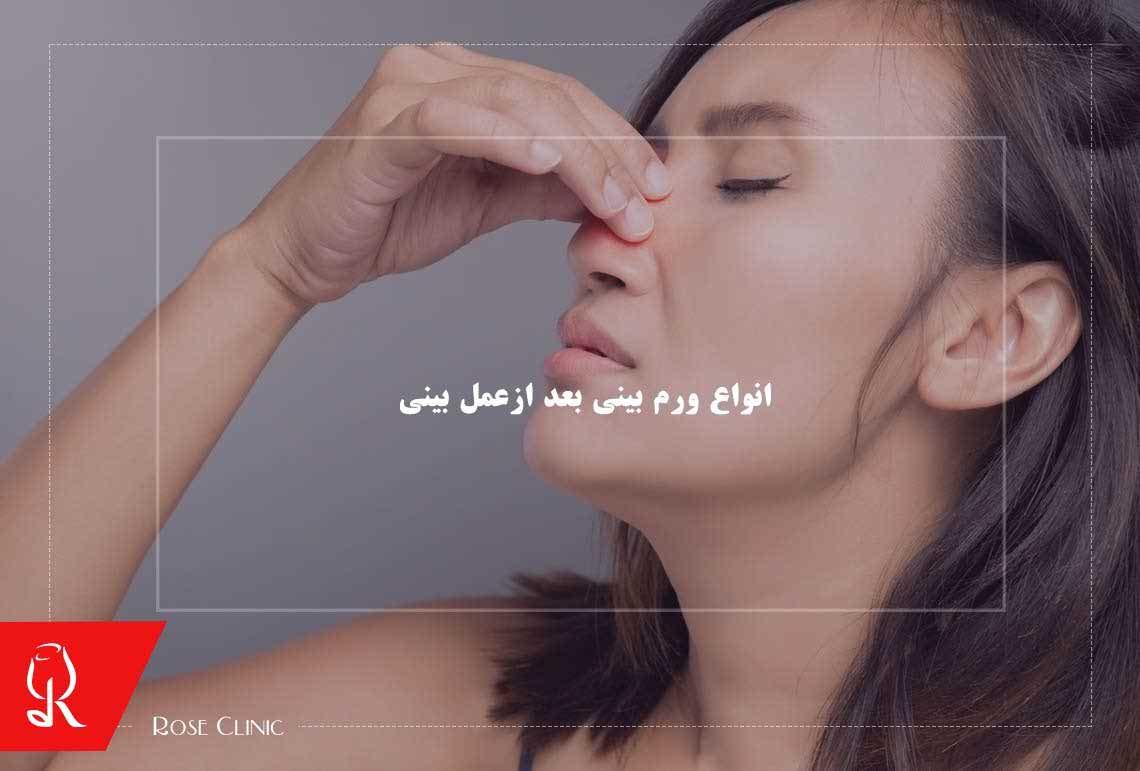 تصویر از انواع ورم بینی بعد ازعمل بینی