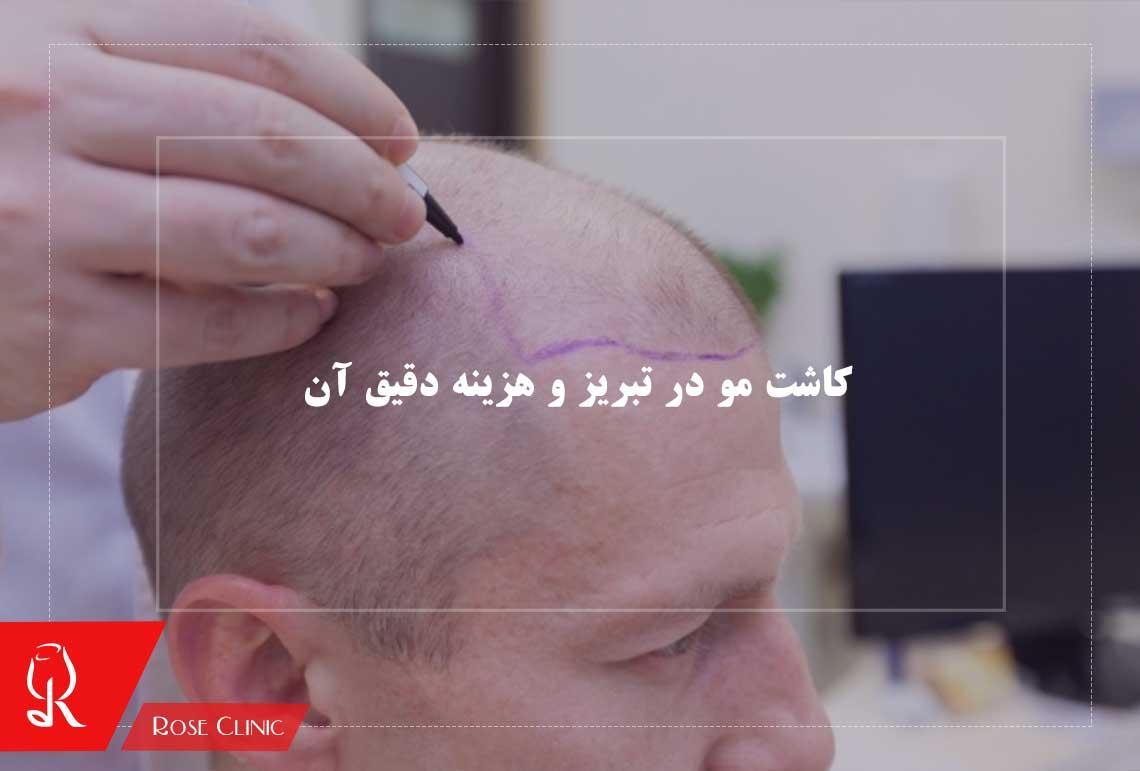 تصویر از کاشت مو در تبریز و هزینه دقیق آن