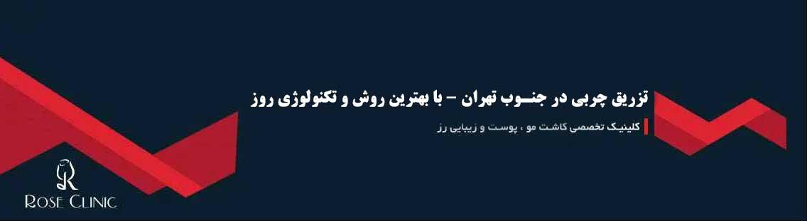 تزریق چربی در جنوب تهران - با بهترین روش و تکنولوژی روز