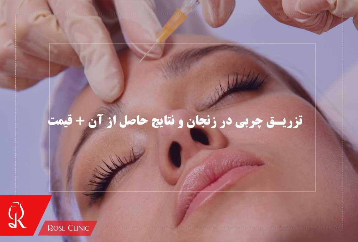 تصویر از تزریق چربی در زنجان و نتایج حاصل از آن + قیمت