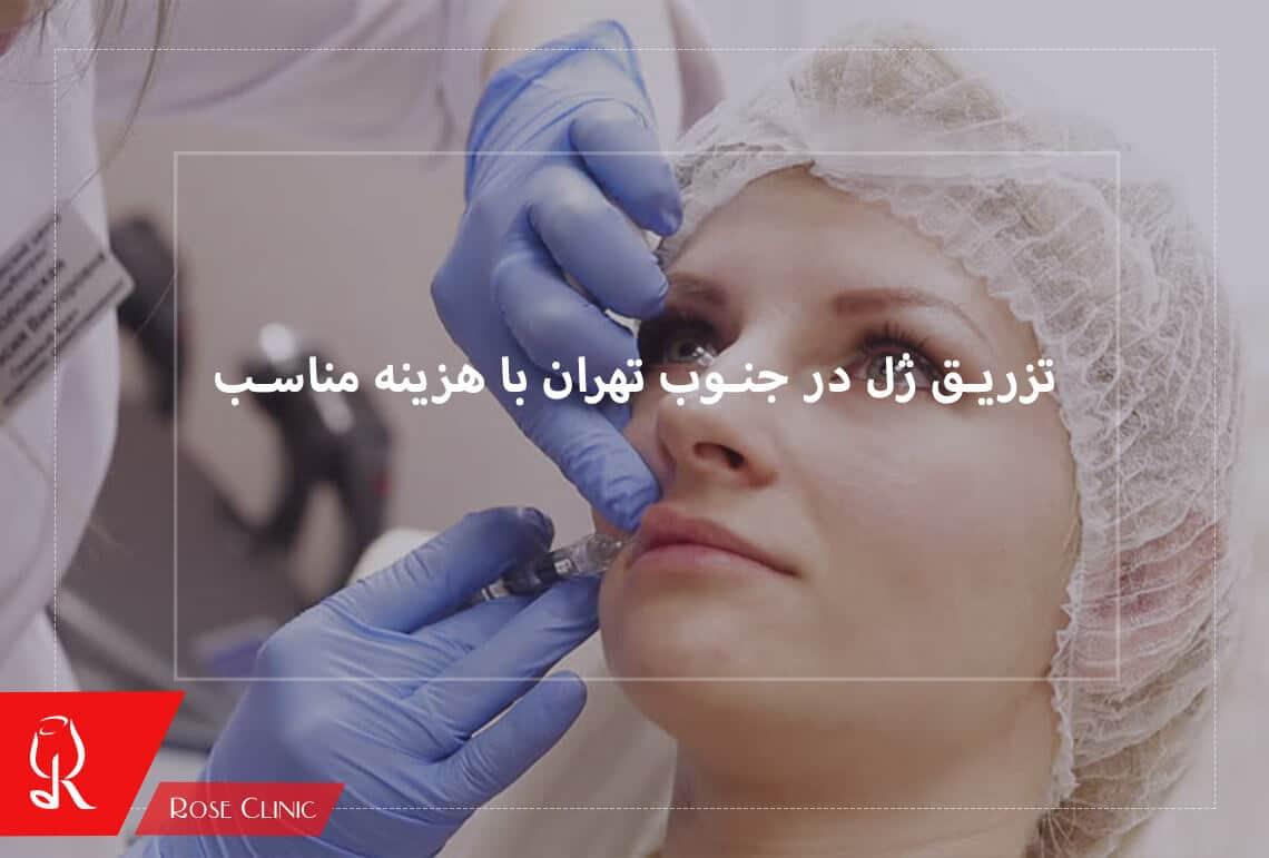 تصویر از تزریق ژل در جنوب تهران با هزینه مناسب