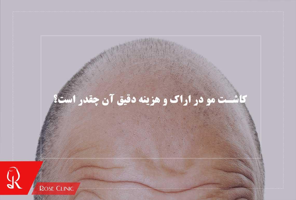 تصویر از کاشت مو در اراک و هزینه دقیق آن چقدر است؟