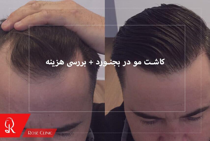 تصویر از کاشت مو در بجنورد + بررسی هزینه